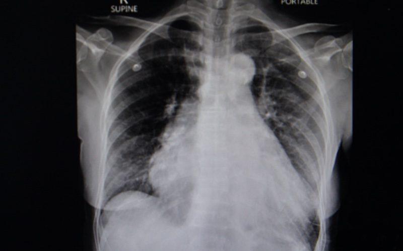 ראדון גורם למחלות בנשימה